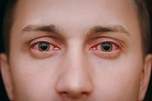 Is it Possible to Prevent Redeye When Smoking Weed?